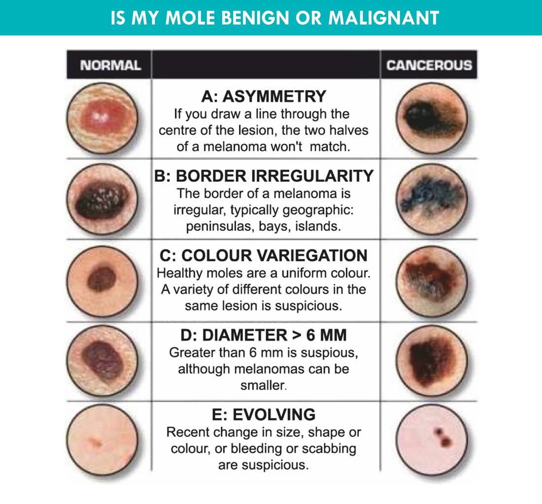 Dr Ameesha Mahajan | Mole Removal